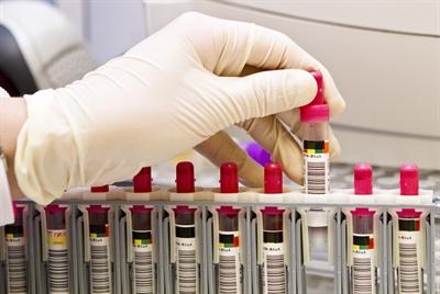 ©  - 1.443 Menschen sind nach der labor-technischen Bestätigung aktuell im Märkischen Kreis mit Corona infiziert. Foto: Labor Wahl/Märkischer Kreis